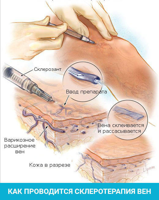 Как проводится склеротерапия расширенных вен на руках