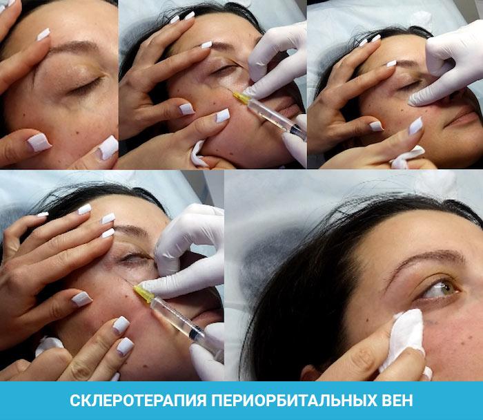 Склеротерапия периорбитальных вен вокруг глаз